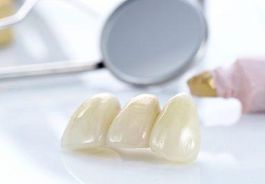 Коронки на зубы из диоксида циркония - DENTAL OPTIMA