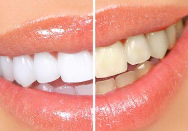 Отбеливание зубов – польза или вред? - DENTAL OPTIMA