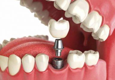 Удобство и надёжность современного протезирования - DENTAL OPTIMA